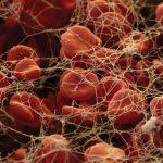 Fibrinogen and Blood Clots